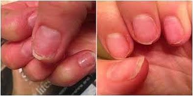 Obat Herbal Infeksi Jamur Kuku