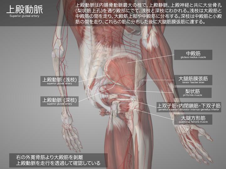 2014-28a_11_上殿動脈・大殿筋剝離し上殿動脈を透過.png
