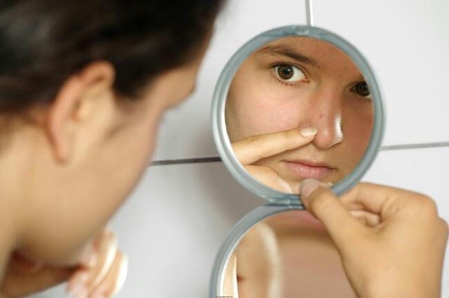 Cara Mengatasi Komedo di Hidung, Ikutilah Langkah ini !!!