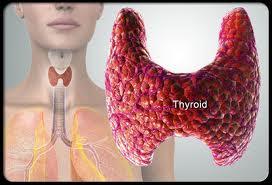 sakit tiroid