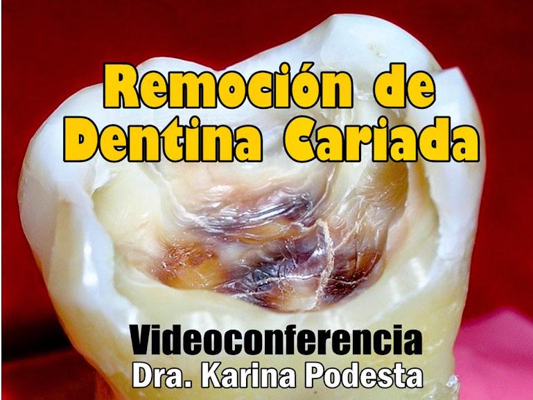 dentina-cariada