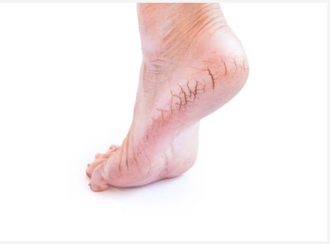 5 Easy Ways That Help You To Heal Cracked Heels