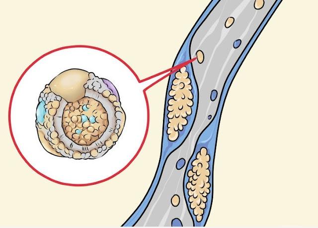 الكولسترول و الثوم