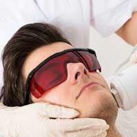 épilation définitive laser visage homme