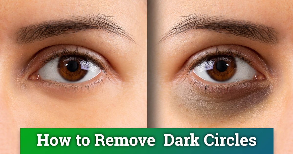 Health Care: How to remove dark circles under eyes ...