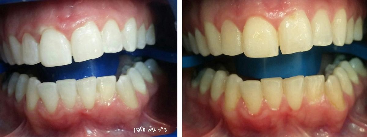 זום, הלבנת שיניים במרפאה תוך שעה - ד''ר גיא וולפין, אסתטיקה דנטלית