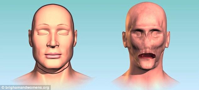 Dallas Wiens: First Full Face Transplant Man
