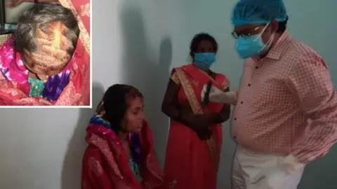 बिहार: प्रेमी की शादी से नाराज प्रेमिका ने दुल्हन को दी खौफनाक सजा, आंखों में डाला फेवीक्विक और बाल काटे