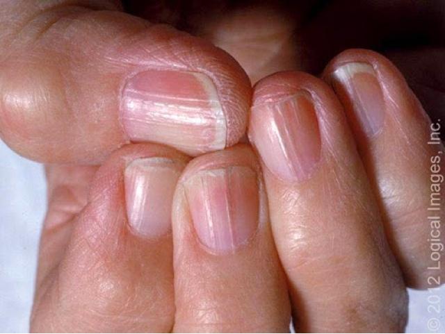 Como es posible curar el hongo las uñas