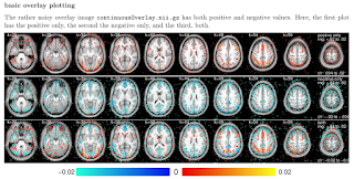 volumetric brain images in R and knitr.