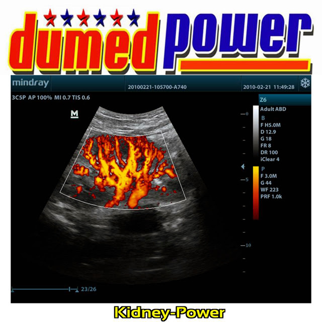 Mindray-Z6-Kidney-Power-A-Well-Balanced-Ultrasound-Made-in-China