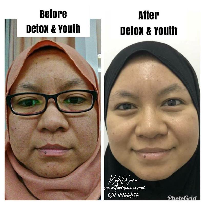 Testimoni Youth Skincare Shaklee Orang Malaysia