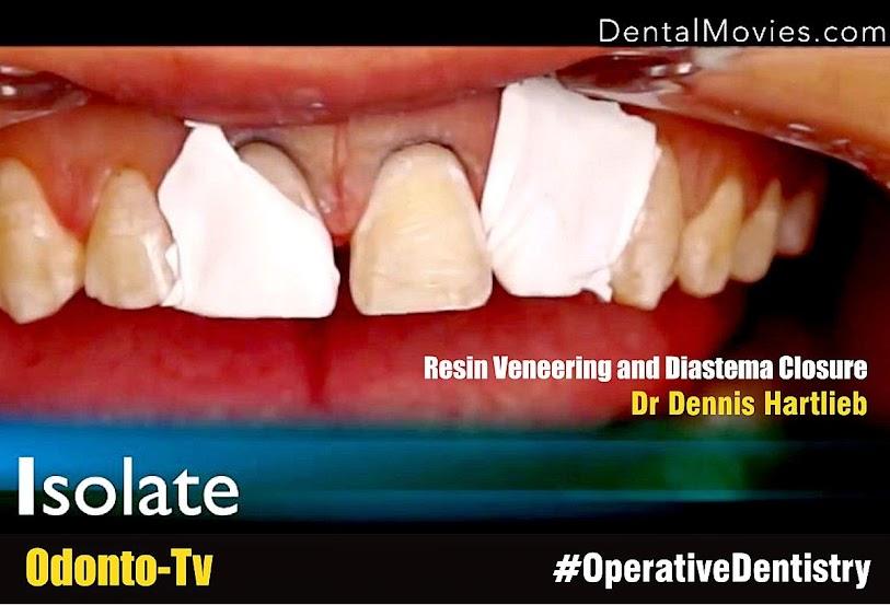 Diastema-Closure