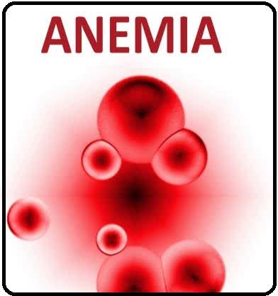 فقر الدم pdf