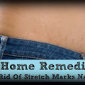 Top 15 Home Remedies to Remove Pregnancy Stretch Marks