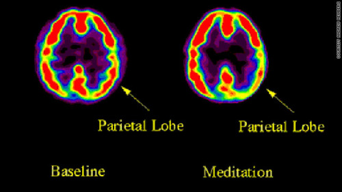 Brain On Meditation, Yoga And Meditation