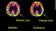 Brain On Meditation