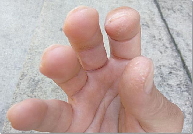 dedos-mao-direita-90-dias