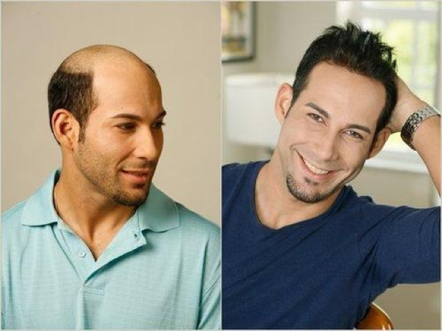 Graceful Hair Makeover Men Weaves To Get Rid Of Baldness