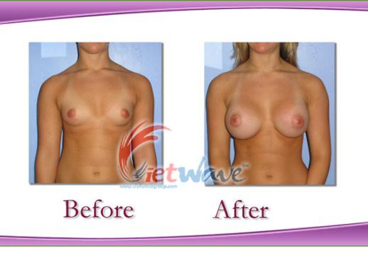 Kem nâng nở ngực super breast sculpt