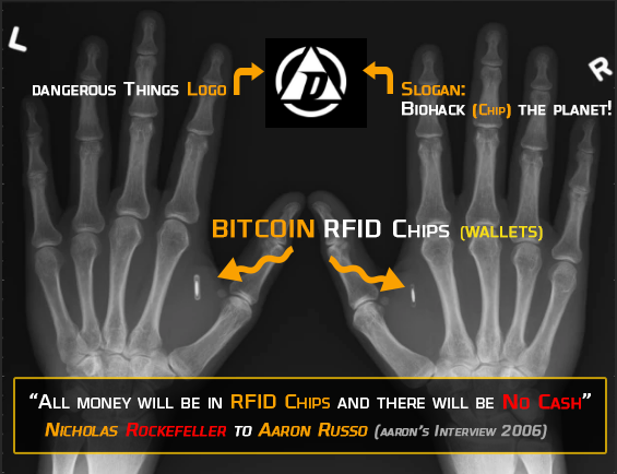 Bitcoin RFID Chip implants - hot Wallets