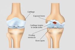 नी रिप्लेसमेंट का मतलब हिंदी में (Knee Replacement Meaning in Hindi)