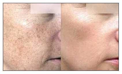 Traitement lumière pulsée photorajeunissement avant après de la peau du visage