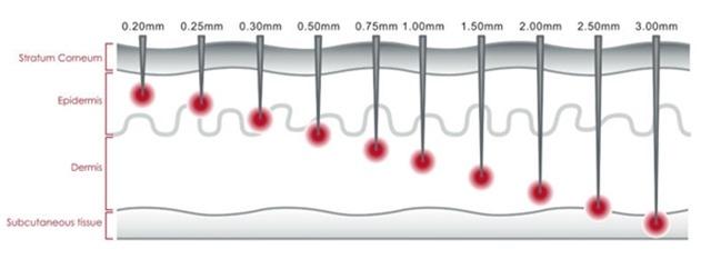 dermaroller-needle-sizes