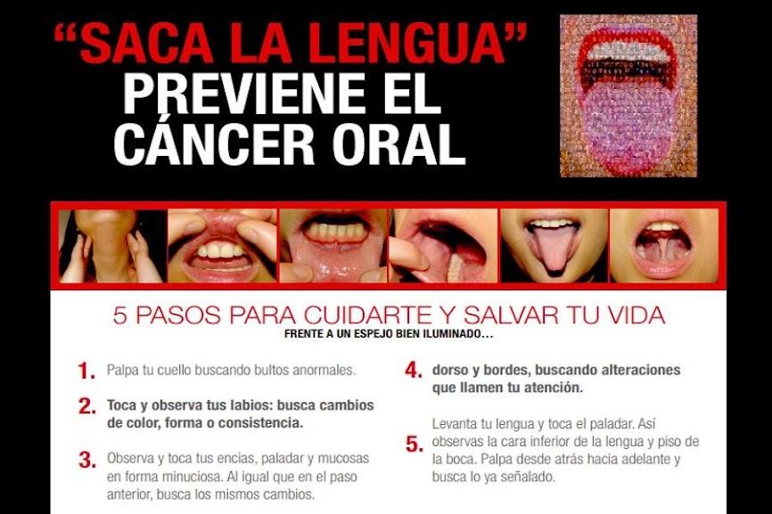 cancer-oral