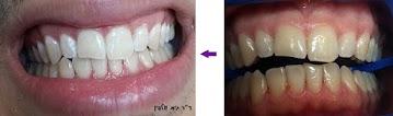 """הלבנת שיניים תוך שעה במרפאה, זום, ד""""ר גיא וולפין - אסתטיקה דנטלית"""