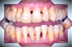 Keep your mouth healthy - gum disease