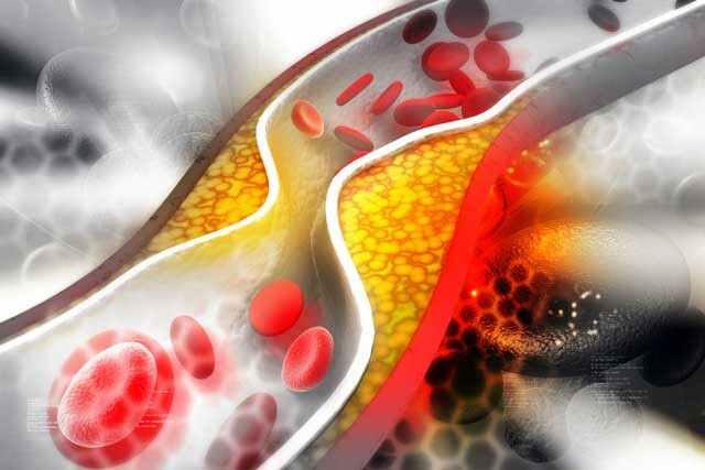 يتحكم الملح الأسود في مستويات الكوليسترول