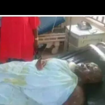 A married man bathed with acid by her girlfriend for deceiving her that he is single