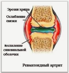 Узнаем все причины болей в ногах по ночам