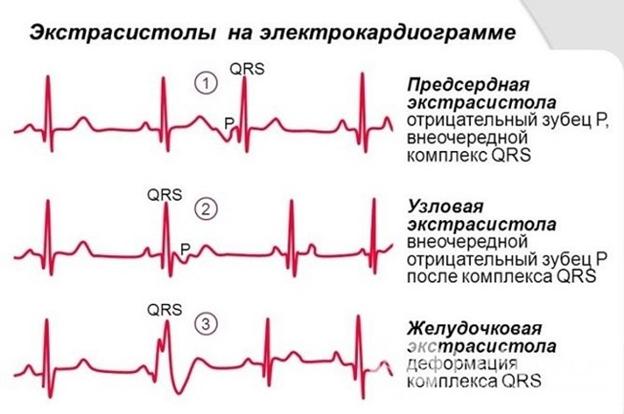 Что принимать при экстрасистолии сердца