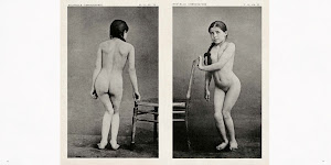 2 foto's van een meisje met vergroeide rug, zowel van voor als achter