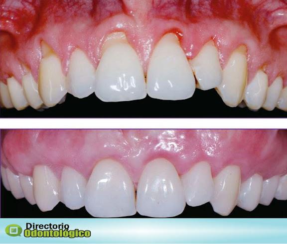 cirugía-periodontal