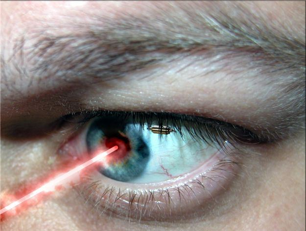 LASER CORRECTION OF VISION