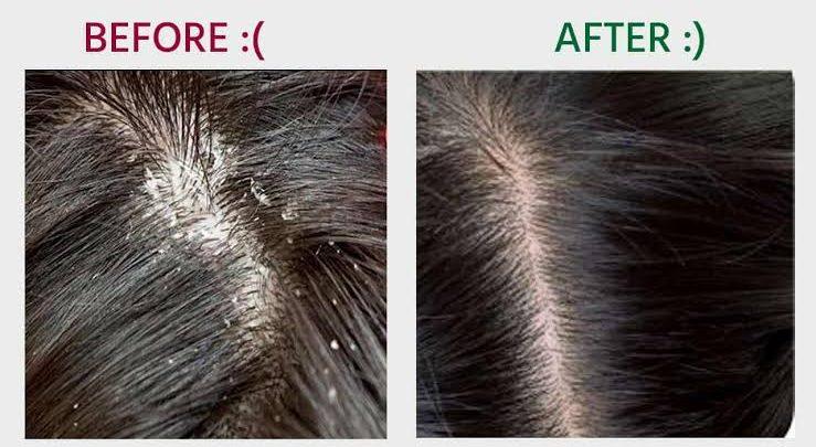 بمكونين فقط حل جذري للتخلص من قشرة الشعر وتنظيف فروة الرأس ومنع التساقط