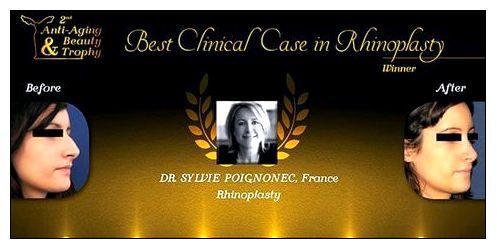 rhinoplastie paris dr sylvie poignonec. Black Bedroom Furniture Sets. Home Design Ideas
