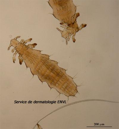 muizenluis (polyplax serrata)