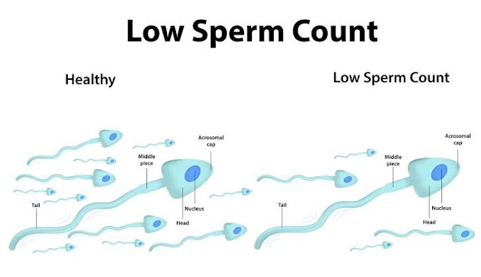 Tips On How To Prevent Low Sperm Count