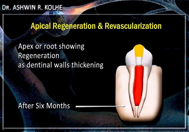 Apical-regeneration
