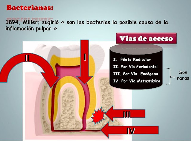 inflamacion-pulpar