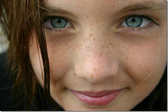 freckled