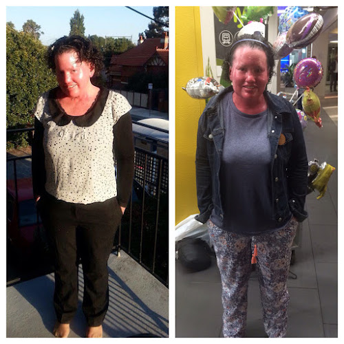 Two pictures of Carly Findlay wearing workwear and pyjamas