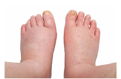 Water retention: Causes, treatment and home remedies for swelling in the hands, feet(Edema)