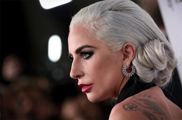 Lady Gaga: Τέλος η αγωνία – Τα δύο σκυλάκια της, που είχαν κλαπεί, επεστράφησαν!