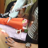 Tattoo Removal - IMG_9322.JPG