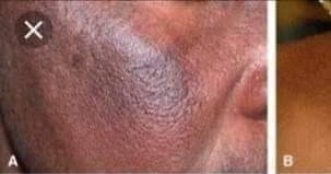 How to remove sunburn